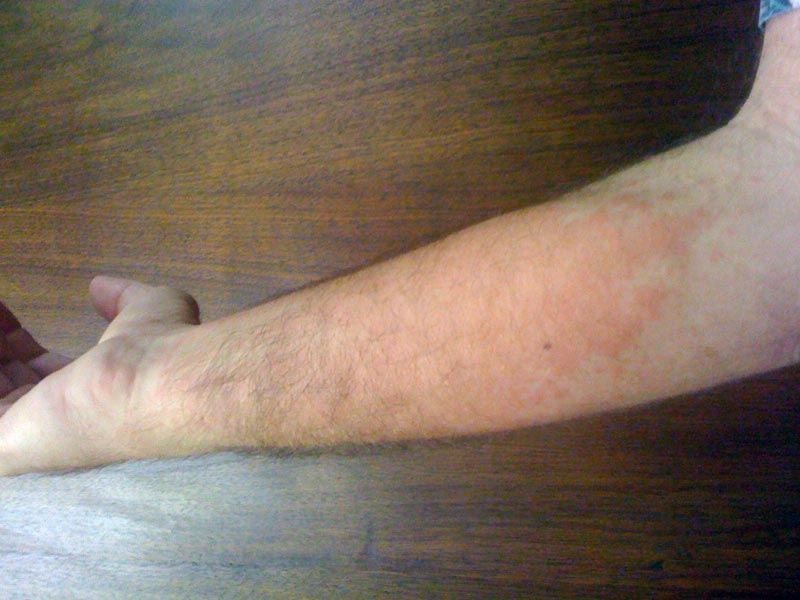 A blotchy red rash that developed on the forearm of a volunteer after removing Poodle-dog bush along a trail in the Station Fire burn area. He first noticed the rash four days after the trail work, and this photograph was taken 10 days after exposure.